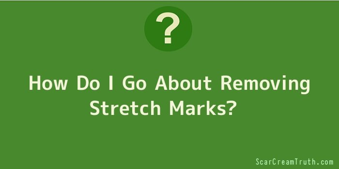 How Do I Go About Removing Stretch Marks