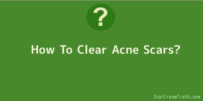 How To Clear Acne Scars
