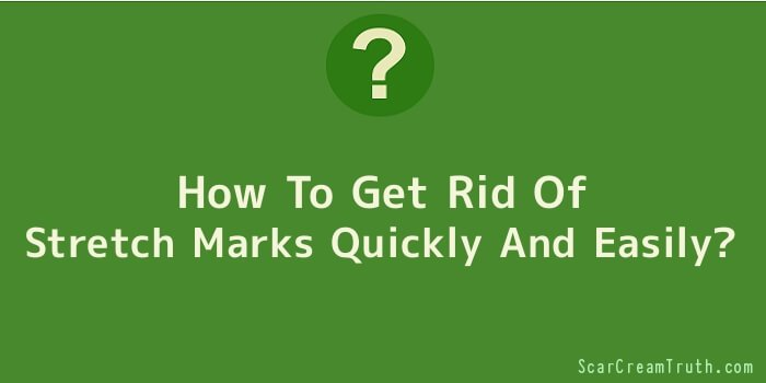 How To Get Rid Of Stretch Marks Quickly And Easily