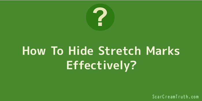 How To Hide Stretch Marks Effectively