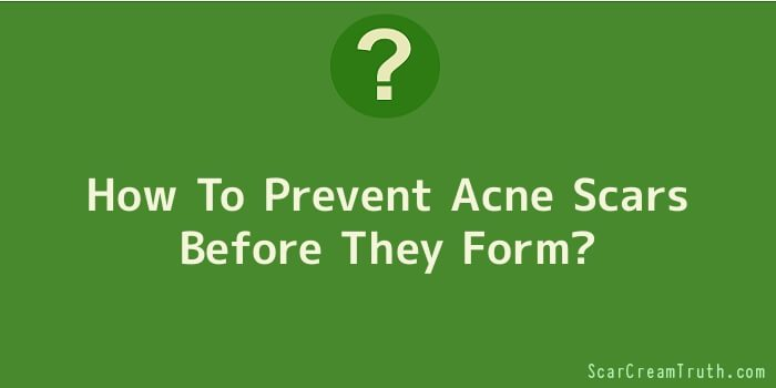 How To Prevent Acne Scars Before They Form