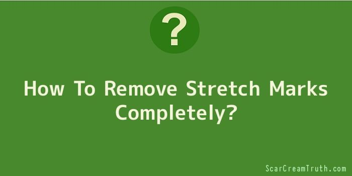 How To Remove Stretch Marks Completely