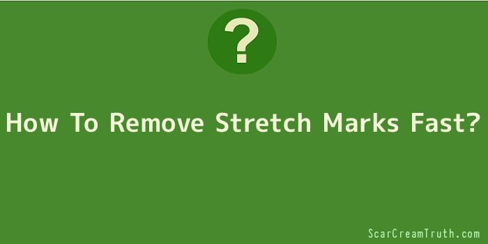 How To Remove Stretch Marks Fast