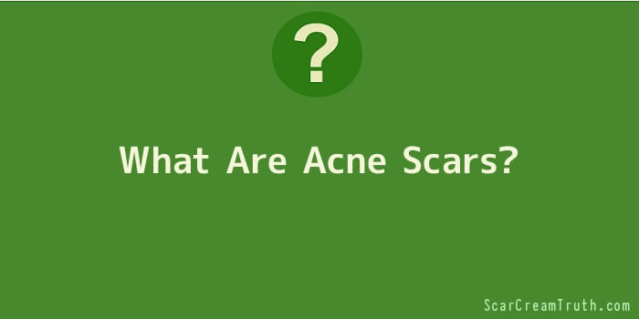 What Are Acne Scars