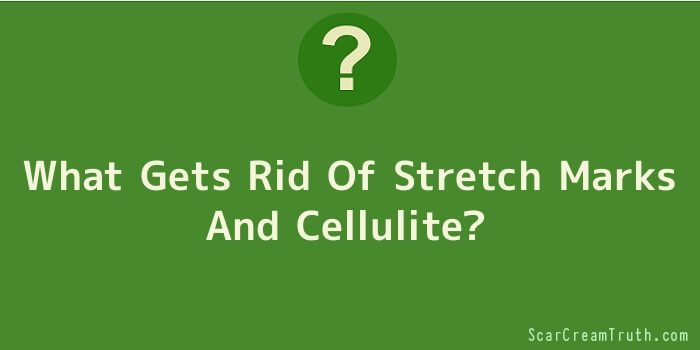 What Gets Rid Of Stretch Marks And Cellulite