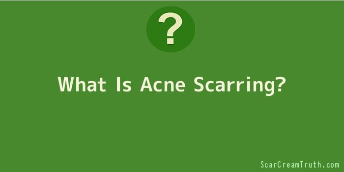 What Is Acne Scarring