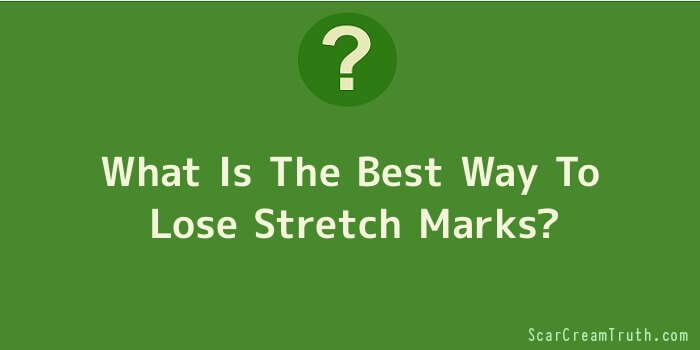 What Is The Best Way To Lose Stretch Marks