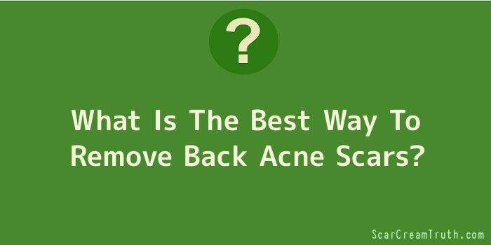 What Is The Best Way To Remove Back Acne Scars