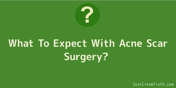 What To Expect With Acne Scar Surgery