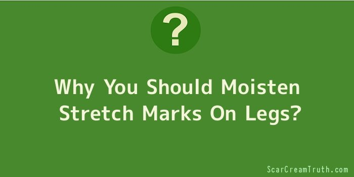 Why You Should Moisten Stretch Marks On Legs