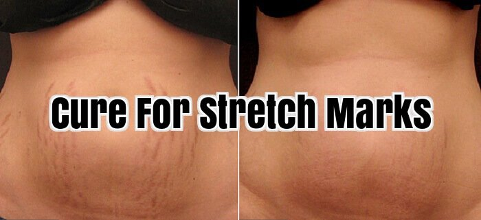 Cure For Stretch Marks