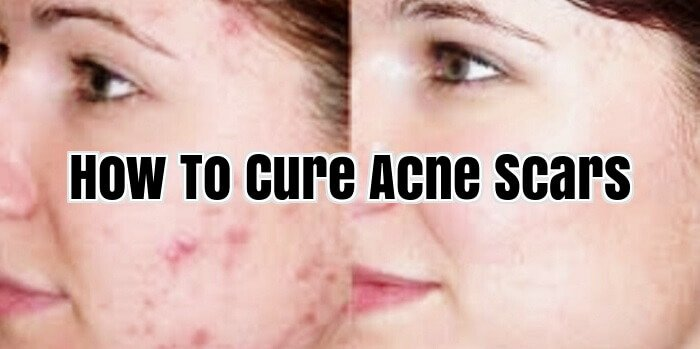 How To Cure Acne Scars