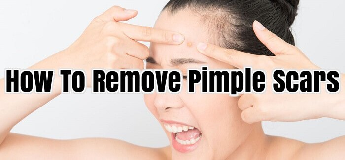 How To Remove Pimple Scars