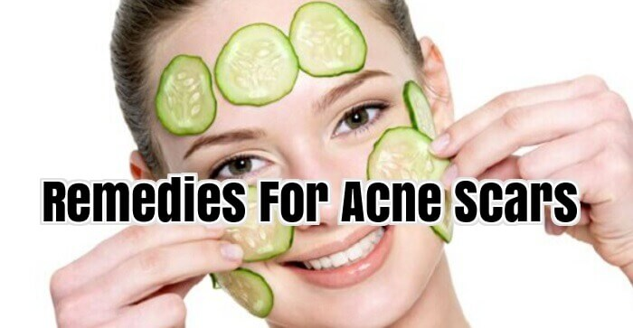 Remedies For Acne Scars