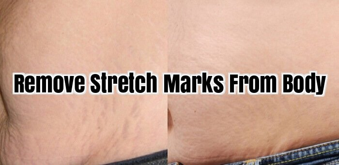 Remove Stretch Marks From Body