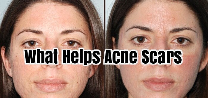 What Helps Acne Scars